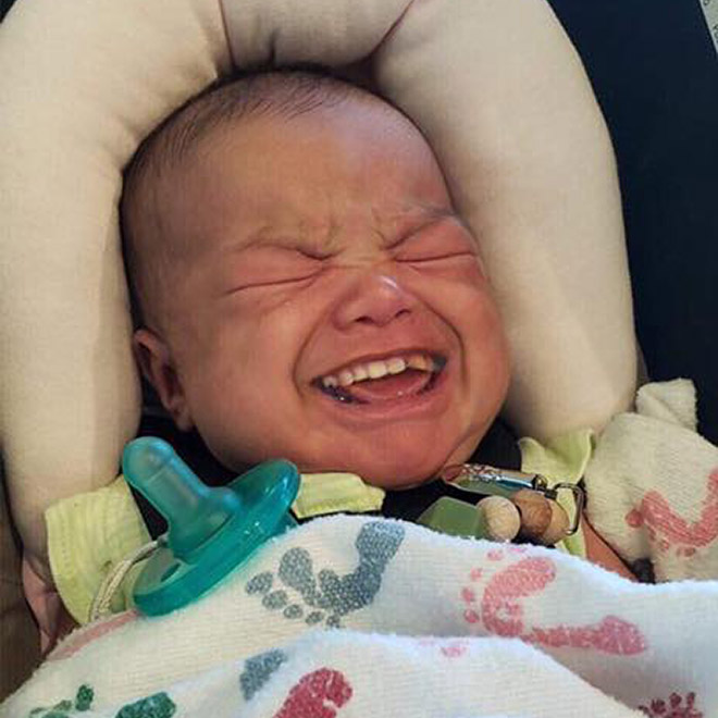 Baby with adult teeth. Horrifying, isn't it?