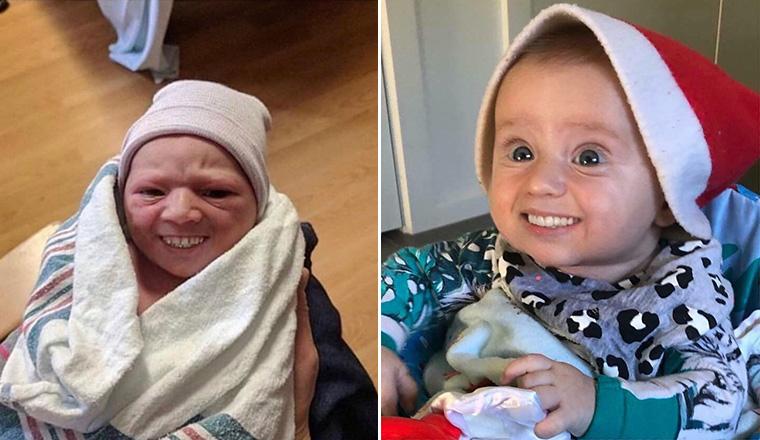 Babies With Adult Teeth Look Terrifying