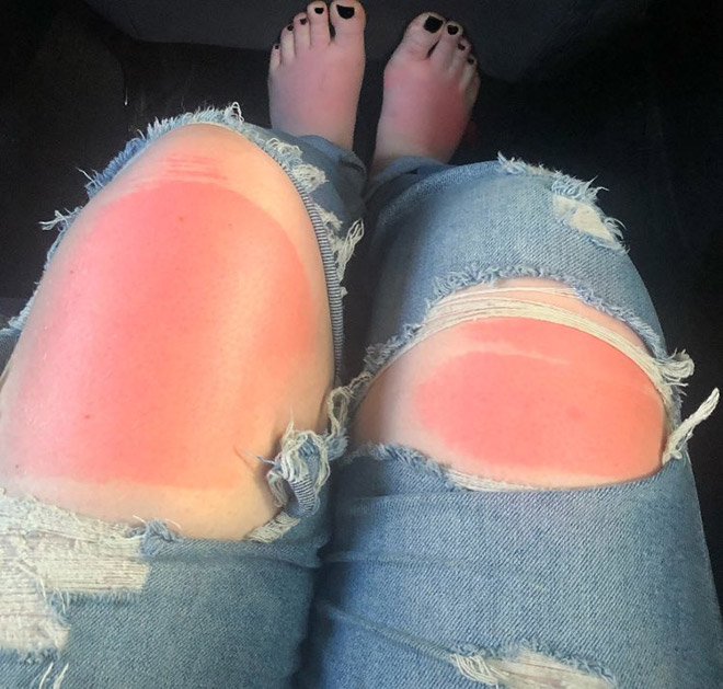 Spending time in the sun while wearing ripped jeans might not be the smartest choice.